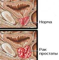 Анализ крови на ПСА (PSA). Скрининг рака простаты.