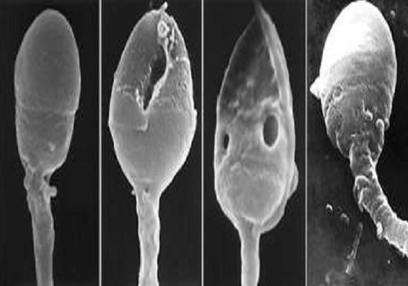 Фрагментация днк спермограммы цена