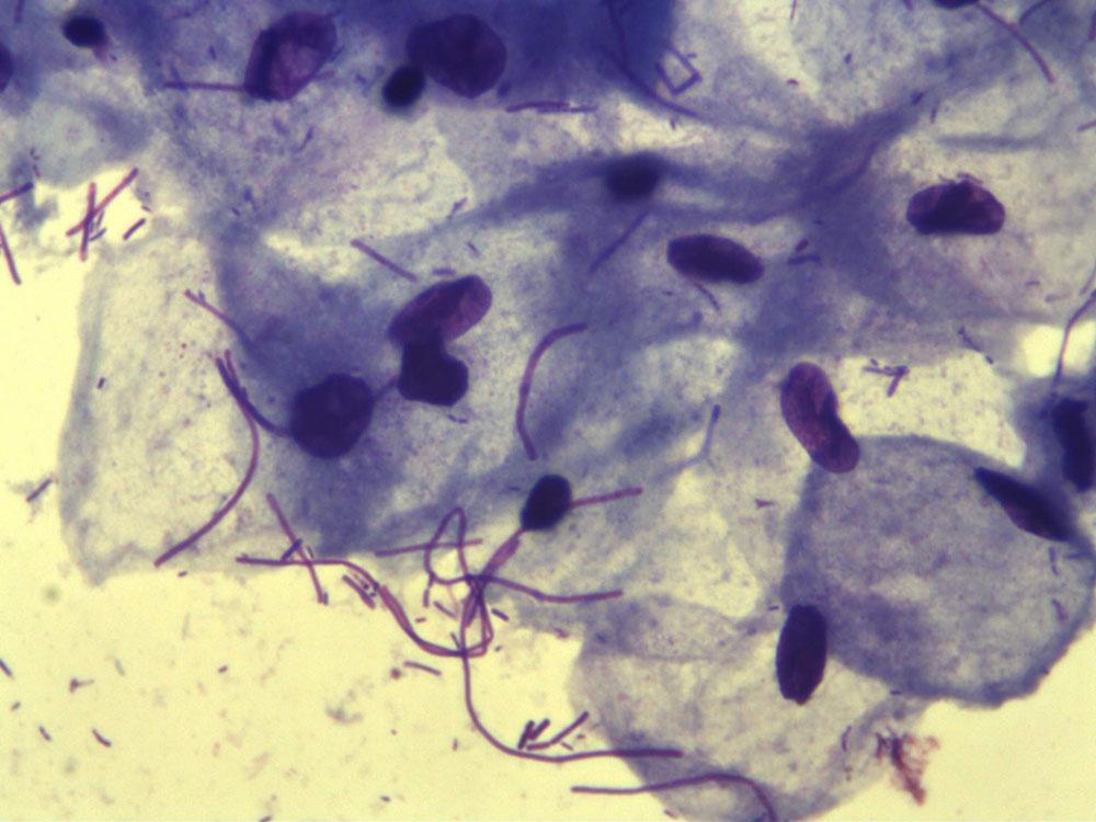 Инструкция анализа гинекологический мазок микроскопическое исследование